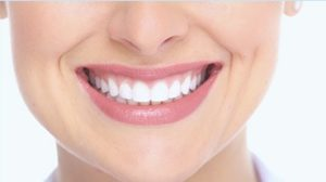Beautiful smile after cosmetic dentistry in Fairfax, VA
