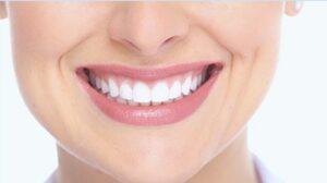 Smile makeover by Fair City Mall Dental Care
