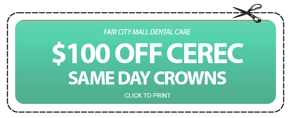 $100 Off Cerec Same Day Crowns Coupon - Fair City Mall Dental Care