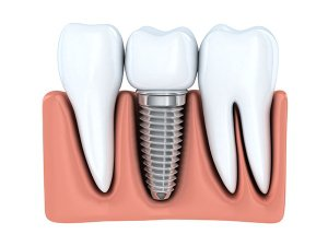 Implant Dentistry In Fairfax