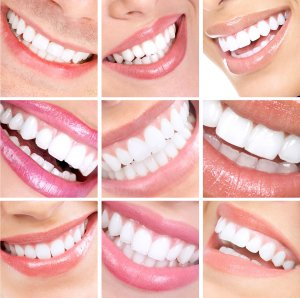 Porcelain Veneers In Fairfax