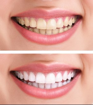 Teeth Whitening In Fairfax